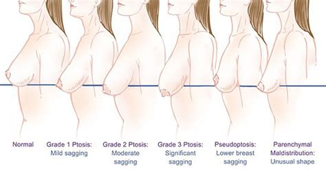 how to shrink breasts naturally jpg 1200x627