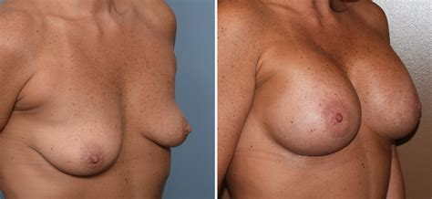 video of breast implant surgery jpg 1500x693